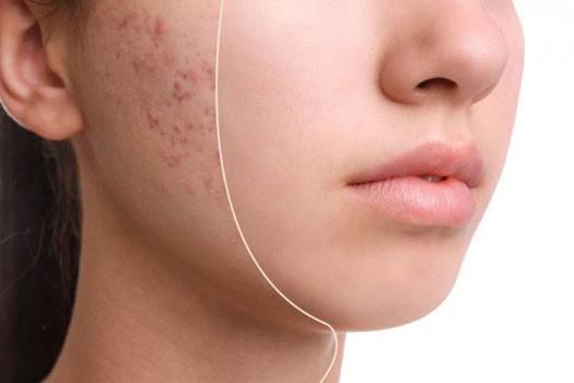 Акне на лице: причины появления и способы лечения