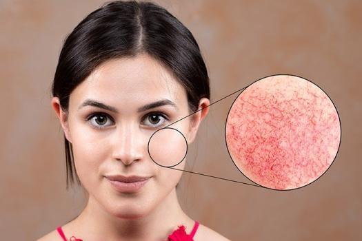 <b>Мифы и правда о куперозе на лице</b> и способы его лечения