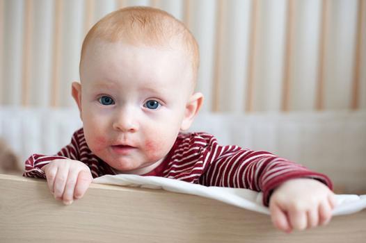 Атопический дерматит у новорожденного ребенка