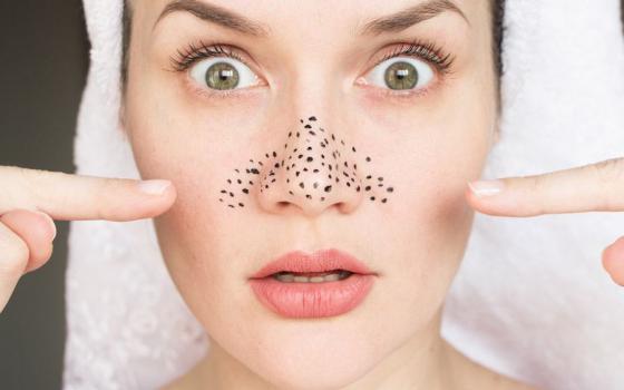 Как избавиться от черных точек на носу раз и навсегда?